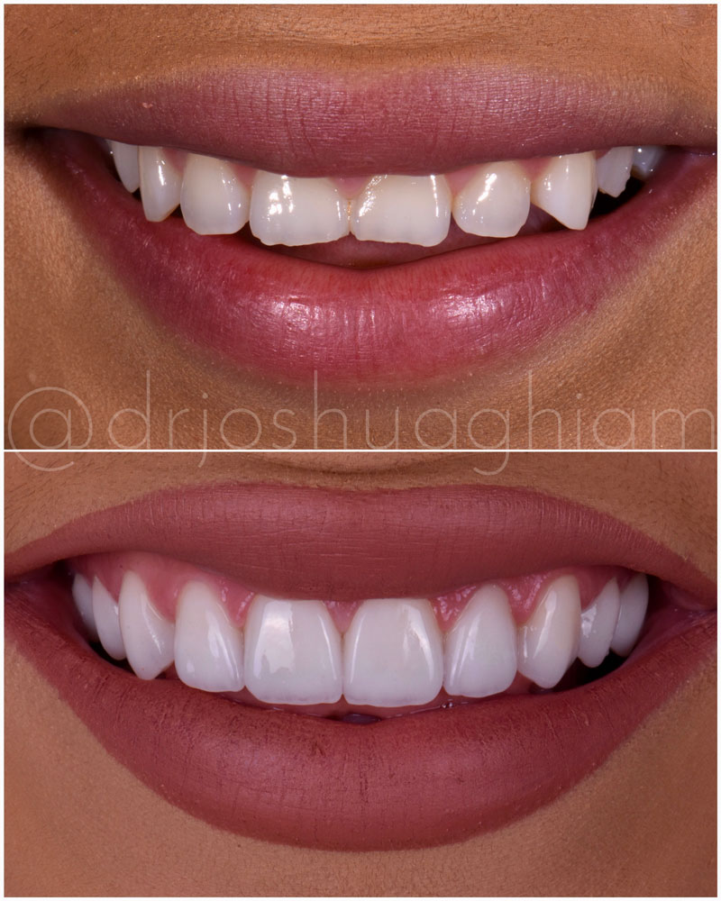 Before & After Smile Gallery, Los Angeles Cosmetic Dentist, Photo 44