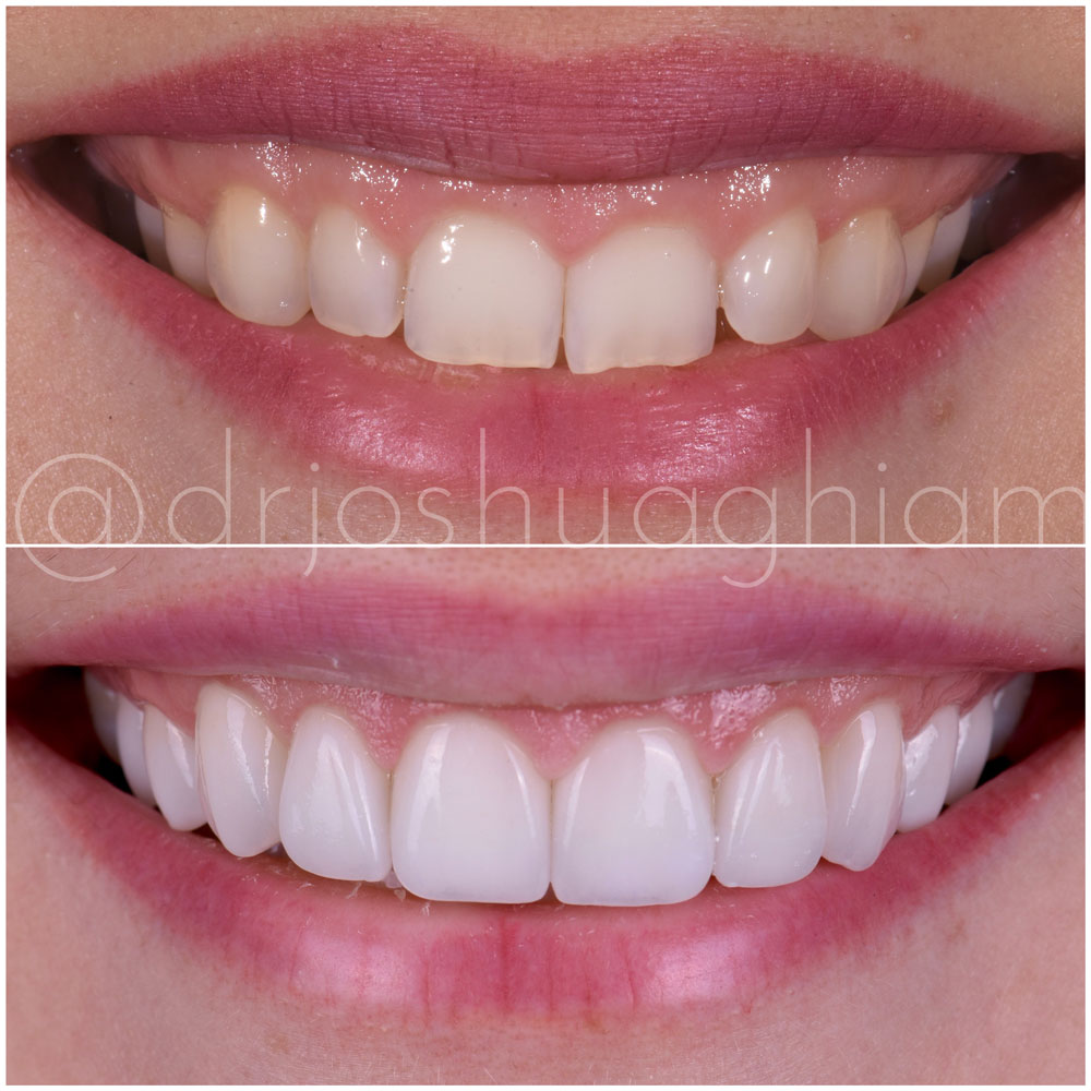 Before & After Smile Gallery, Los Angeles Cosmetic Dentist, Photo 45