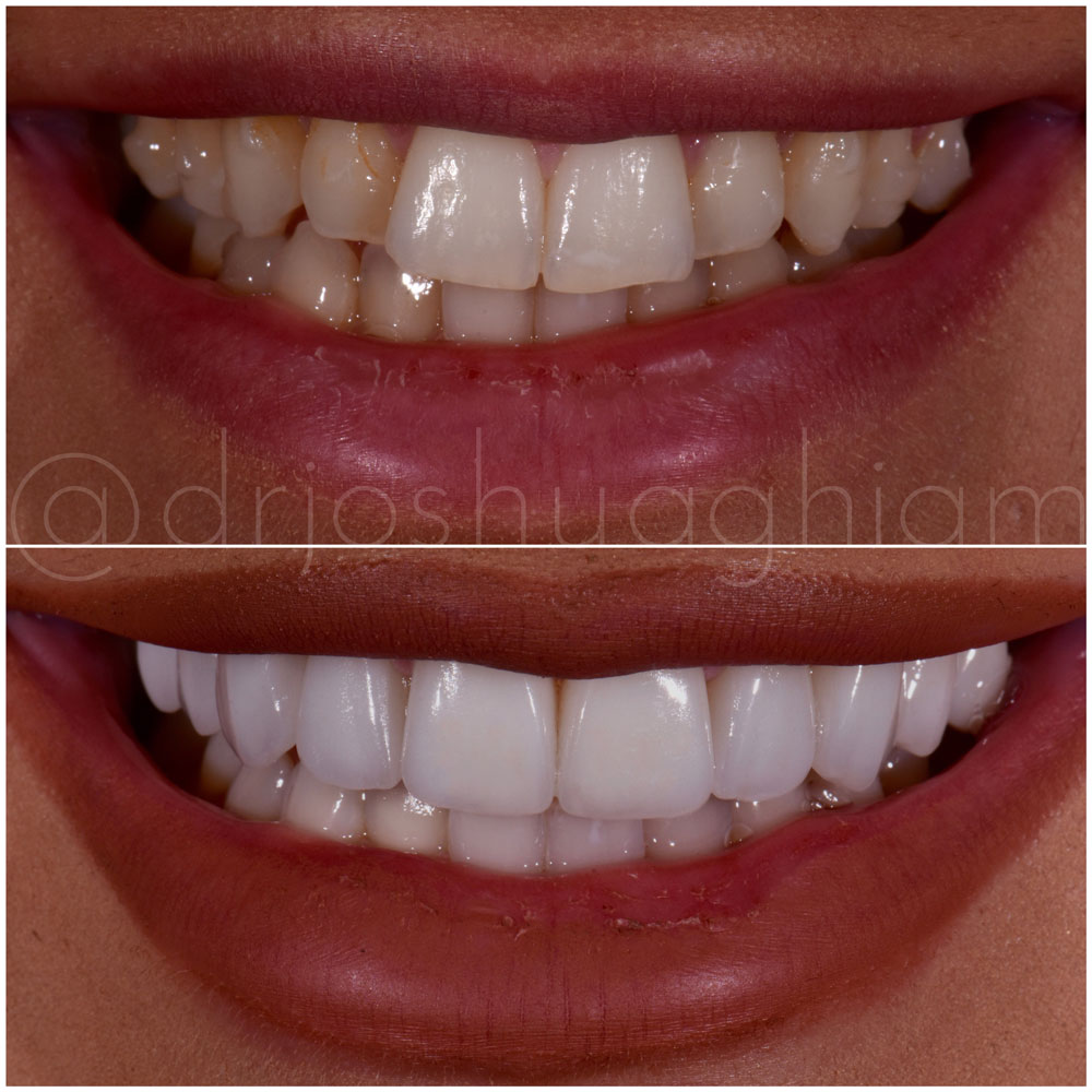Before & After Smile Gallery, Los Angeles Cosmetic Dentist, Photo 47