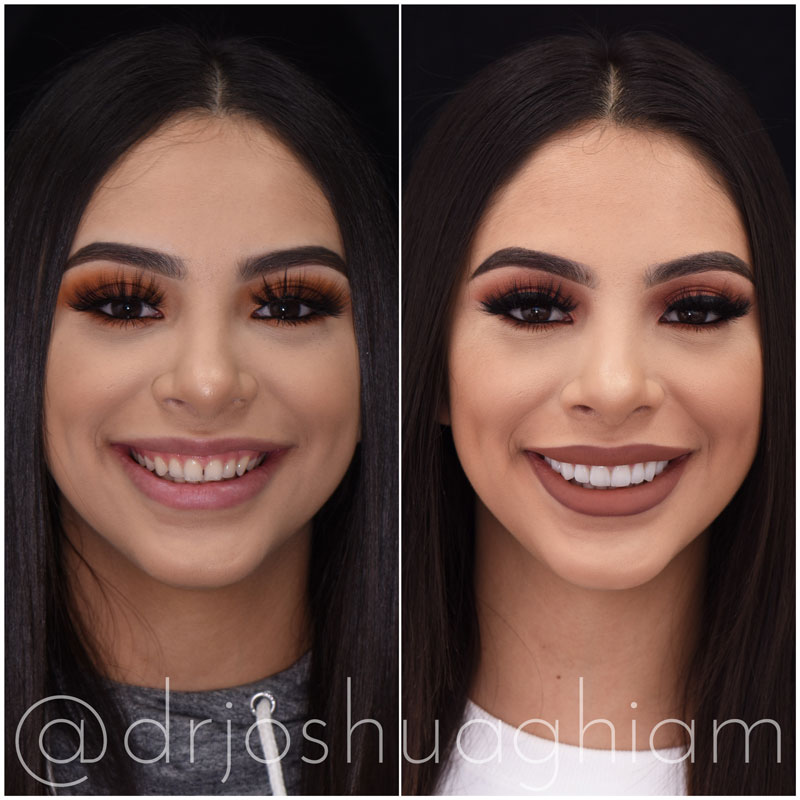 Before & After Smile Gallery, Los Angeles Cosmetic Dentist, Photo 3