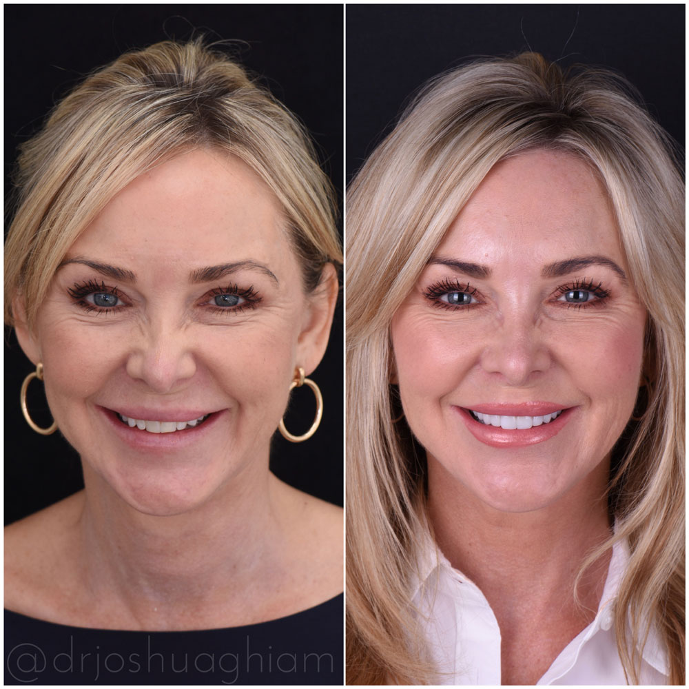 Before & After Smile Gallery, Los Angeles Cosmetic Dentist, Photo 19